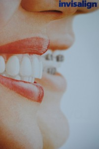 invisalign_2_choices